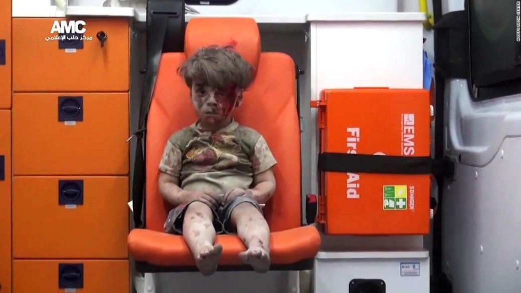 omran-daqneesh-aleppo-syria